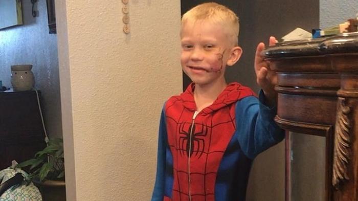 Спасшему сестру от нападения собаки 6-летнему мальчику наложили 90 швов