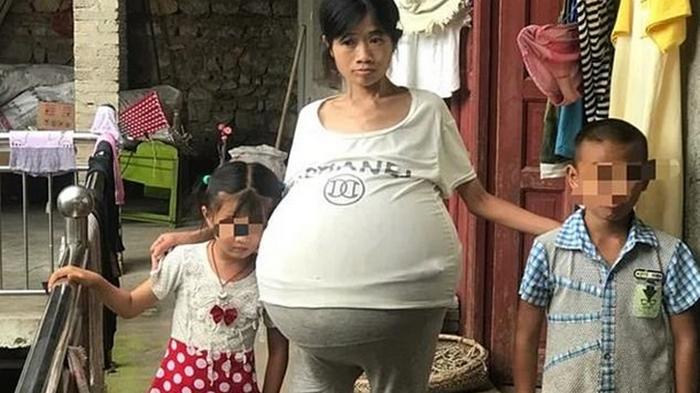 У китаянки неожиданно вырос 20-килограммовый живот (фото)