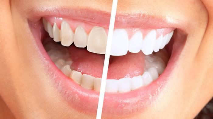 Отбеливание зубов: особенности процедуры