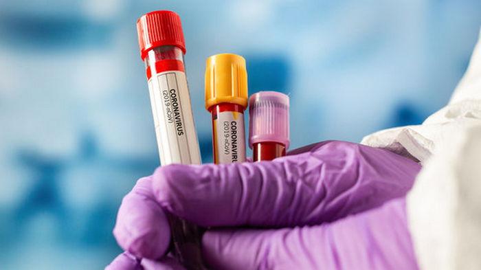 В мире зафиксировано почти 129,5 млн COVID-случаев