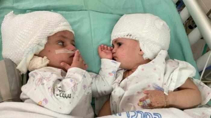 В Израиле успешно разделили сиамских близнецов